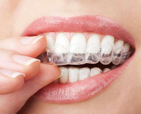 Proteja sus dientes y no deje que el bruxismo interfiera durante sus horas de sueño.