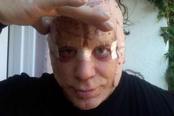 La revista National Enquire ha publicado unas impactantes fotografías de Mickey Rourke después de haberse sometido a una cirugía estética que le ha deformado la cara. El actor, uno de los 'sex symbols' de los ochenta gracias a sus papeles en 'Nueve semanas y media' o 'El corazón del ángel', desde hace tiempo se ha convertido en un auténtico adicto a la cirugía estética y al bótox. Pero Rourke no es el único famoso que ha quedado casi irreconocible después de pasar por el quirófano.