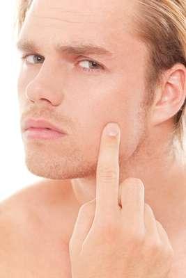 Originada principalmente por conta da presença do hormônio masculino andrógeno, a acne pode se tornar um pesadelo para a pele masculina quando tratada da maneira incorreta