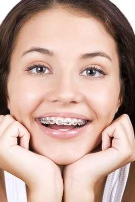 Cada vez mais, os aparelhos ortodônticos se espalham pelos sorrisos, não só de crianças, como de adultos. Além de corrigir o alinhamento dos dentes, o tratamento previne uma série de problemas relacionados com articulação dental incorreta. Mas, para ter apenas resultados positivos, é preciso ter atenção redobrada com a higiene bucal. Isso porque a escova e o fio dental encontrarão mais obstáculos na boca, como braquetes, fios e bandas.