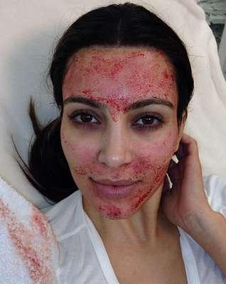 Algumas mulheres famosas escolhem truques dos mais estranhos para cuidar da beleza da pele e cabelos. Conheça os truques a seguir.Kim Kardashian: para deixar a pele mais bonita, a socialite faznjeções no rosto com o próprio sangue
