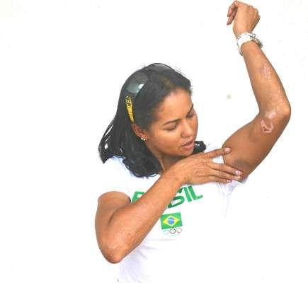 Atropelada no dia 14 de março por um caminhão, ciclista Clemilda Fernandes exibe cicatrizes do acidente