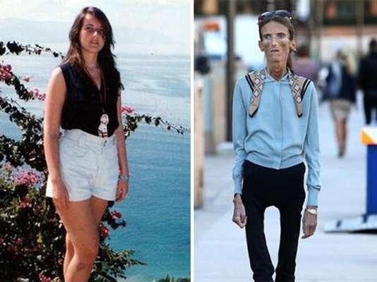 Valeria Levitina es un caso crítico de anorexia que salió a la luz pública a finales de 2012, pero hasta ahora toma relevancia mundial, debido a que miles de jovencitas continúan buscándola para que comparta sus secretos, pues ellas confiesan desean lograr su bajísimo peso.