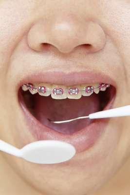 Si la higiene bucal es importante para la salud de la boca y del cuerpo, ella se multiplica en el momento en que uno comienza a ser tratado con ortodoncia.