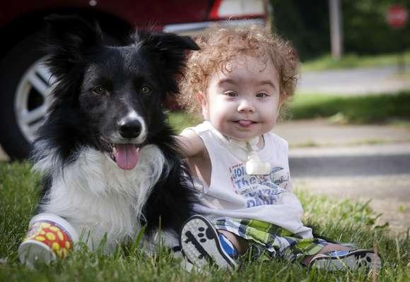 Kaiba Gionfriddo brinca com o cão da família, Bandit, no exterior de sua casa em Ohio (Estados Unidos): previsão de um futuro saudável para o garoto