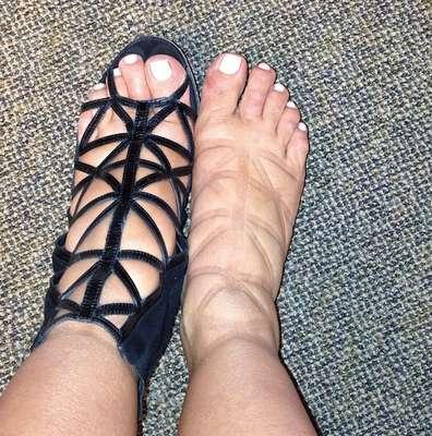 No dia 8 de maio, Kim Kardashian postou foto no Instagram dos pés inchados e marcados por sandália apertada