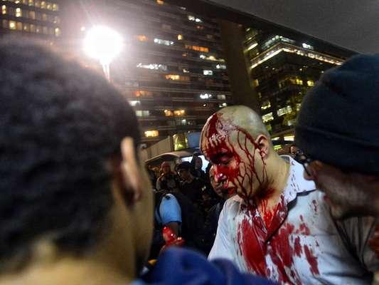 São Paulo (SP) - Jovem vítima de agressão durante o protesto