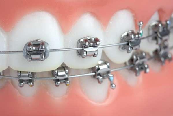 A força aplicada pelo aparelho provoca a movimentação dentária. Isso é possível por conta de uma remodelação óssea, iniciada a partir do processo inflamatório no periodonto tecidos que revestem e envolvem o dente. Todo processo inflamatório está associado a algum grau de desconforto e dor, cuja intensidade está relacionada ao limiar de dor de cada paciente