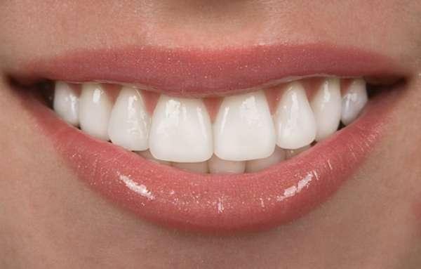 Um dos recursos para garantir dentes alinhados e branquinhos em apenas algumas horas é a faceta de porcelana