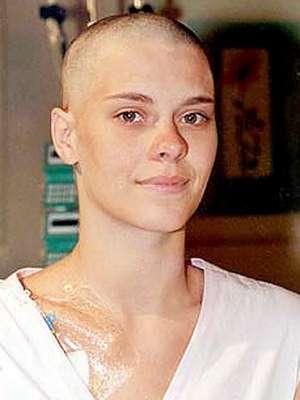 A atriz Carolina Dieckmann raspou a cabeça para viver a personagem Camila na novela Laços de Família em 2000. Na trama, ela foi diagnosticada com câncer