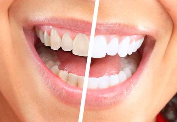 O uso de kits clareadores de forma exagerada ou sem orientação profissional pode causar danos à saúde oral do usuário, inclusive, lesões cancerígenas