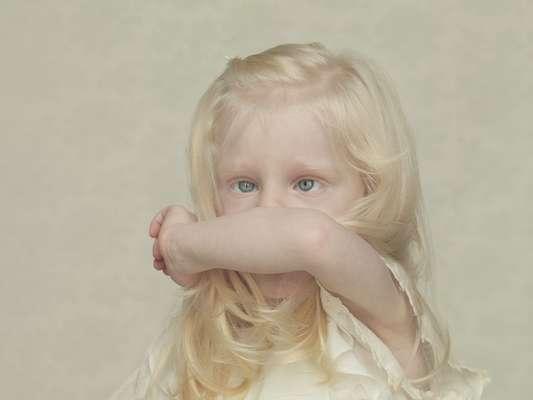 O albinismo é uma condição genética que se caracteriza pela falta de melanina no corpo. Sem ela, os indivíduos apresentam pele extremamente branca e olhos e cabelos claros. Mesmo assim, você sabia que afrodescendentes podem ser albinos?