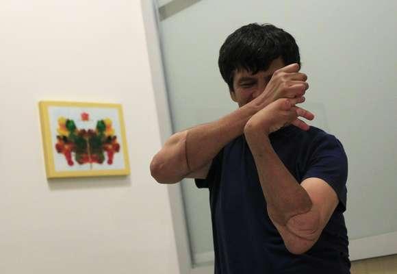 O mexicano Gabriel Granados participa de uma sessão de fisioterapia em um hospital localizado na Cidade do México, após passar por transplante de braços
