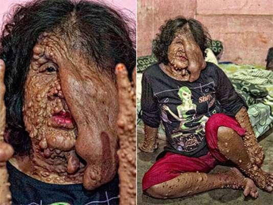 Sarotin, de 46 anos, foi obrigada a deixar o vilarejo onde morava na Indonésia após sofrer de uma condição médica que deixou seu corpo coberto de tumores