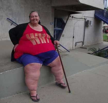 A dona de casa Vilma de Oliveira Gois, 46 anos, pesa 271 quilos e foi diagnosticada por obesidade mórbida. Ela se inscreveu para fazer a cirurgia bariátrica no HC da Unicamp
