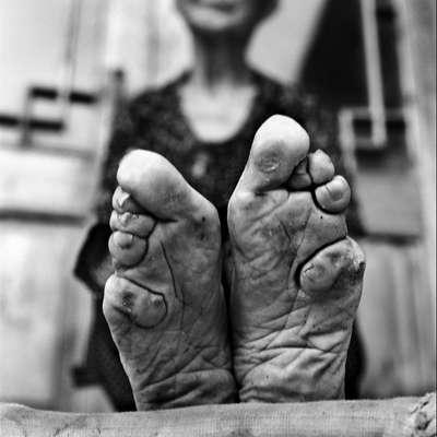 Há mais de 100 anos a prática centenária de amarrar os pés das mulheres para evitar que eles cresçam foi banida na China, mas ainda há mulheres vivas que mostram os resultados deste costume