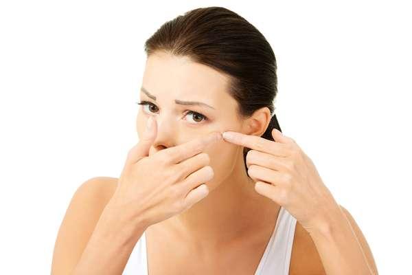 A acne se desenvolve quando os poros da pele ficam obstruídos por excesso de oleosidade, células mortas e bactérias. Ela costuma aparecer no rosto, pescoço, busto, costas e ombros, áreas mais com mais glândulas sebáceas
