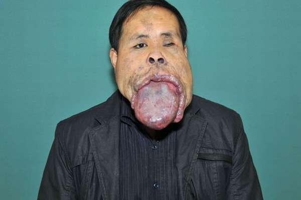 O chinês Wang Youping, 34 anos, não consegue fechar a boca desde os 13 anos de idades e a culpa é dotamanho de sua língua. O membro tem 25 centímetros de extensão, 10 centímetros de largura e 7 de grossura. Em 2012, ele deu início a uma série de operações quedurariam três anos, a fim de encurtar o membro.