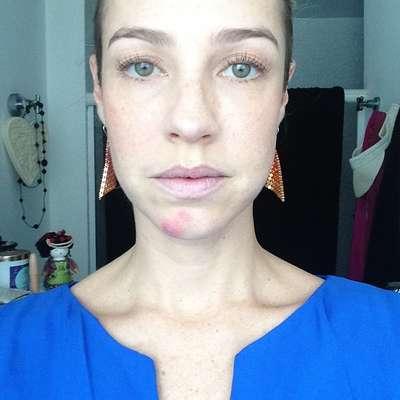"""Luana Piovani exibiu uma baita espinha em foto sem maquiagem postada nesta sexta-feira (26), em seu perfil no Instagram.""""Jaja cubro a safada"""", brincou"""