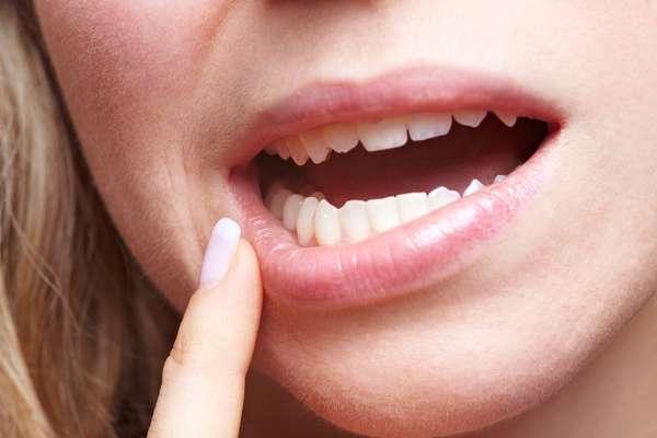 Herpes labial: son dolorosas vesículas en racimos en el interior de la boca o en los labios. Son contagiosas y se producen por el contagio de un virus.