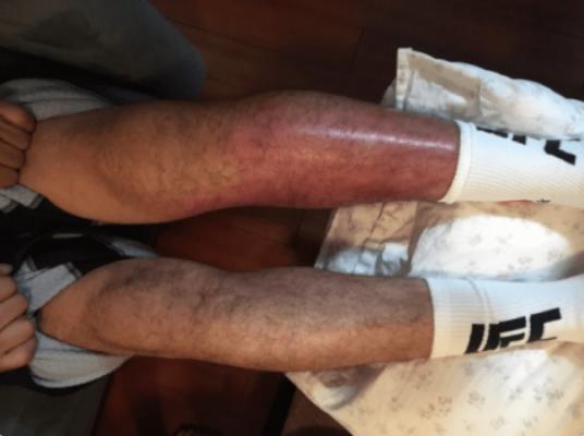 Gilbert Melendez ficou com a perna esquerda machucada