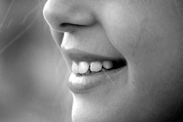 Início: alimentos que ficam nos dentes, por má ou nenhuma higiene bucal, criam as lesões bacterianas.