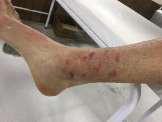 Travas da chuteira de Bruno Guimarães marcaram o tornozelo de Gustavo Gómez